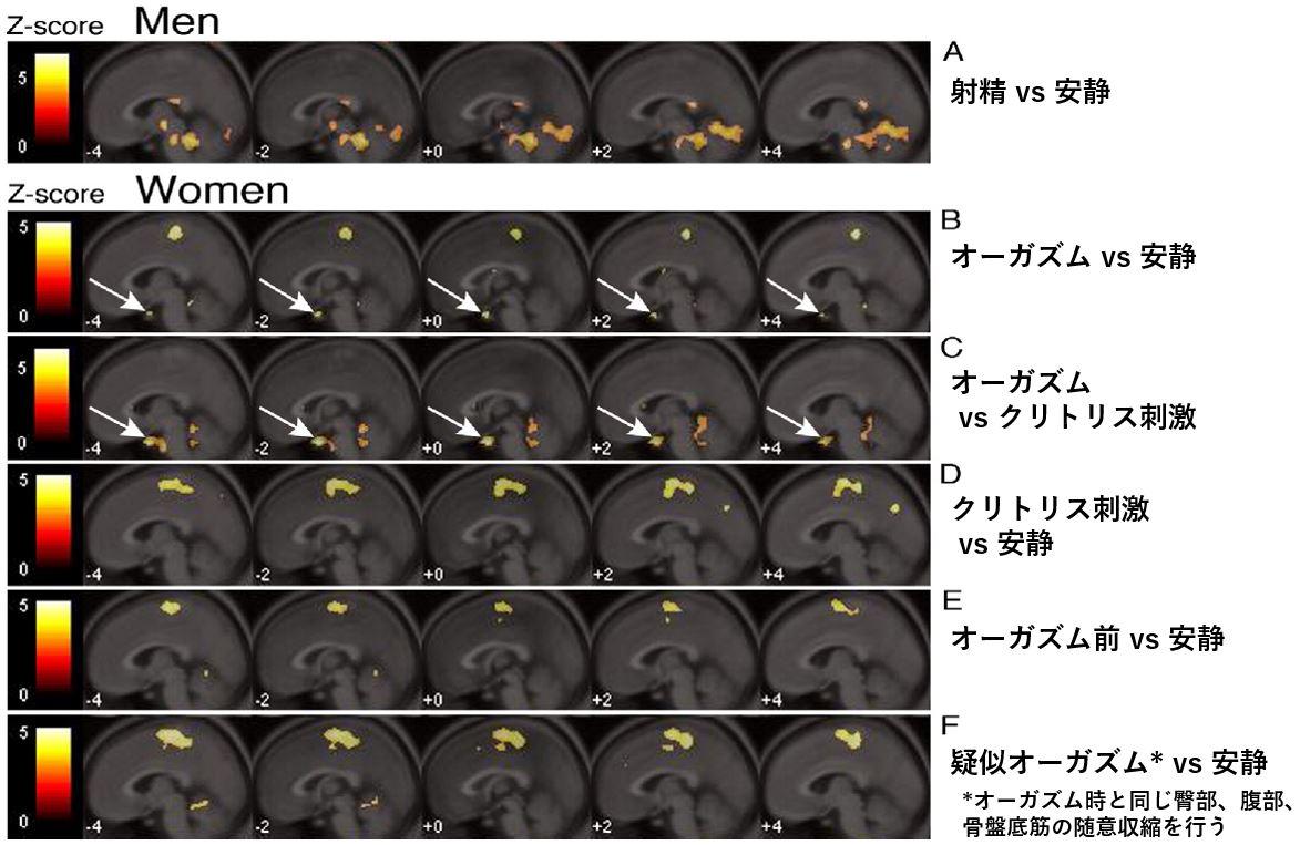 オーガズム 脳活動 fMRI 下垂体 オキシトシン