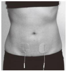 TENS 月経痛緩和 電極貼付位置